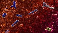 Mayo Clinic Researchers Discover <em>Bordetella parapertussis</em> Outbreak in Southeastern Minnesota in 2014